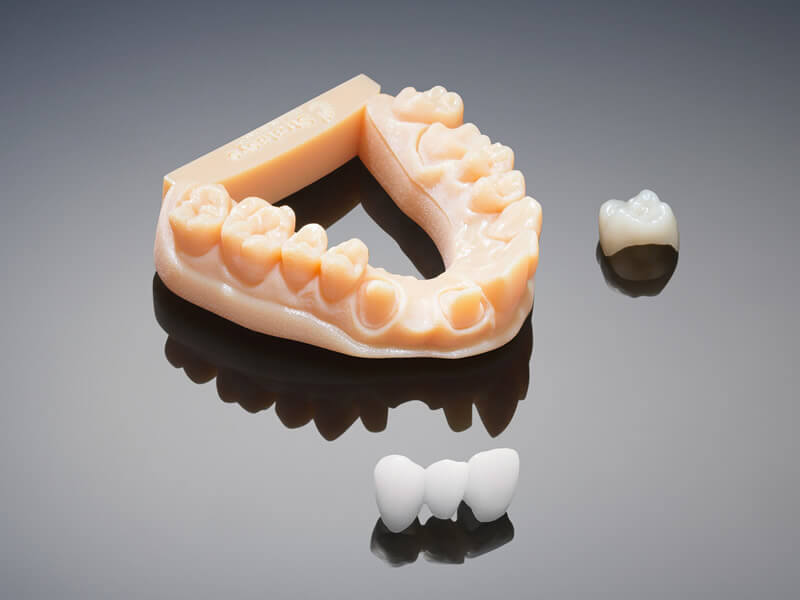 Image exemple pièce réalisée avec EDEN260V, prothèse dentaire