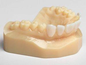 Empreintes dentaires réalisée en impression 3D PolyJet